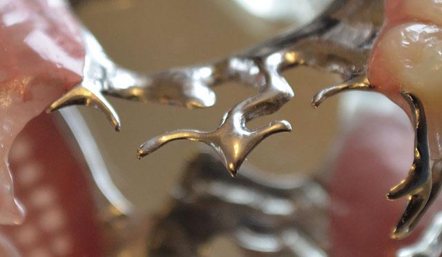 Мал. 7. Т-подібні кламери розташовані на передній дузі