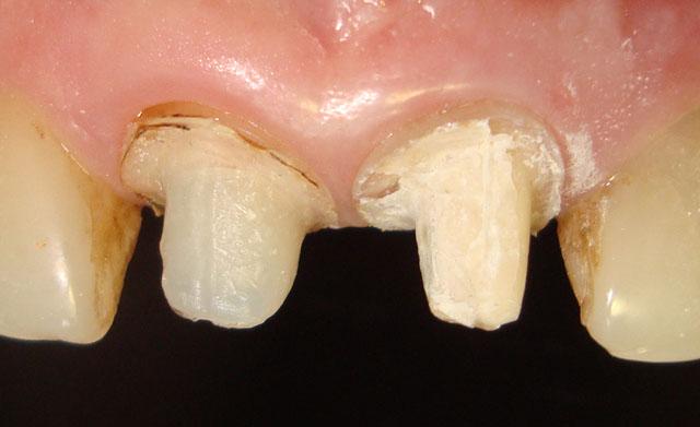 Мал. 3. Стан зубів після зняття реставрацій. Вестибулярна поверхня
