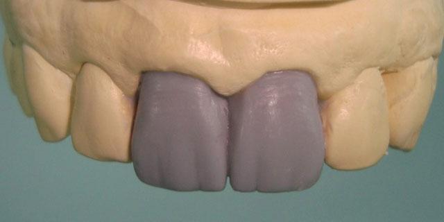 Мал. 10. Воскове моделювання зубів