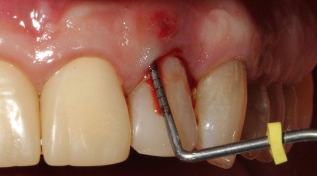 Мал. 11. Видалення зуба 22 за пародонтологічними показаннями