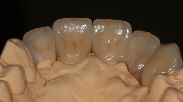 Мал. 14. Керамічні реставрації з штучними яснами