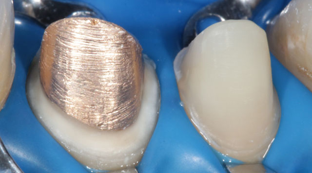 Мал. 15. Ізоляція зубів перед фіксацією