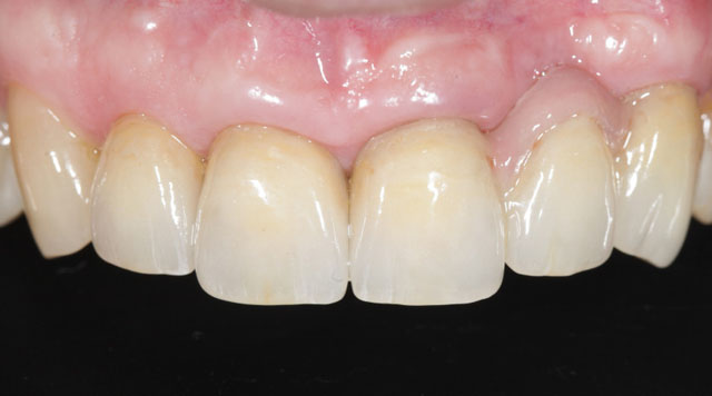 Мал. 18. Біоінтеграція реставрацій у порожнині рота