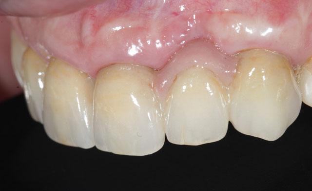 Мал. 19. Біоінтеграція реставрацій у порожнині рота