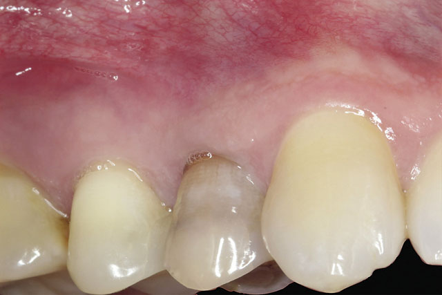 Мал. 1. Вигляд до видалення 14 зуба