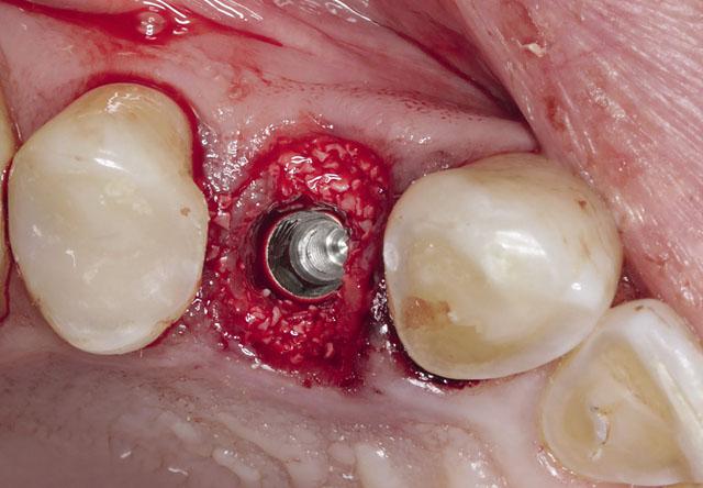 Мал. 3. Лунки заповнені остеопластичним матеріалом