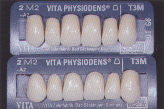 Мал. 10. Передні зуби VITA PHYSIODENS : зверху не шліфовані, знизу зішліфовані для описуваного випадку