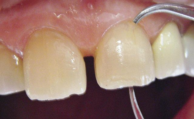 Мал. 10. Вертикальні розміри зубів виміряні мікрометром