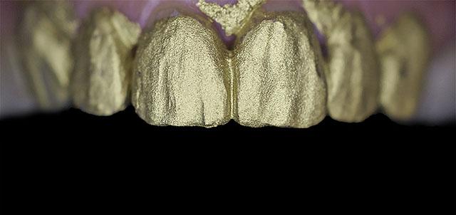 Мал. 10. Матовий лак підкреслює всі особливості текстур вестибулярних поверхонь реставрацій