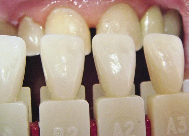 Мал. 11. Визначений колір зубів