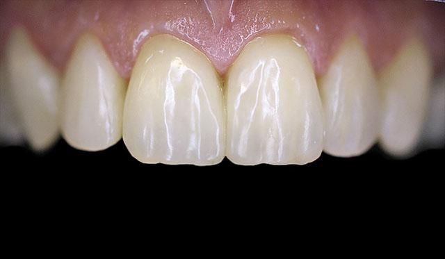 Мал. 11. Поверхня реставрацій 13-23 зубів після фінішної обробки набула натурального блиску