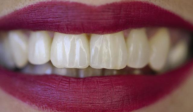 Мал. 12. Зовнішній вигляд зубів при денному освітленні: вражаючий результат