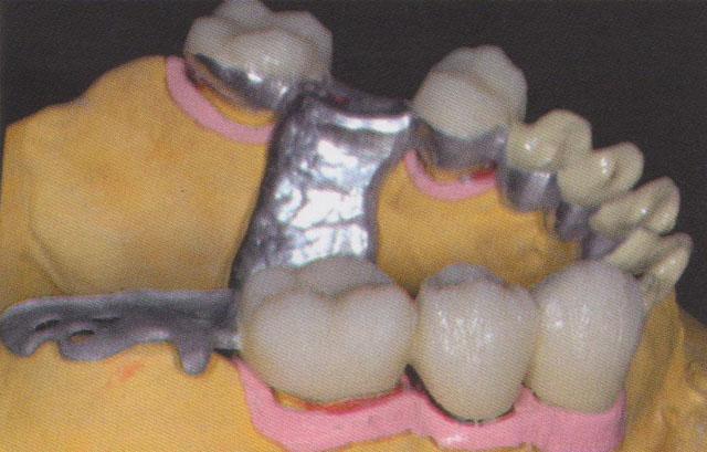 Мал. 15. Облицювання в частково полімеризованому стані перед фінішною обробкою