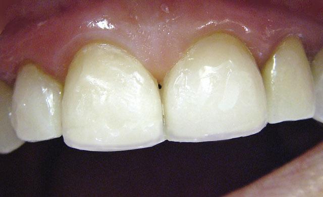 Мал. 16. Відновлені контактні пункти між зубами