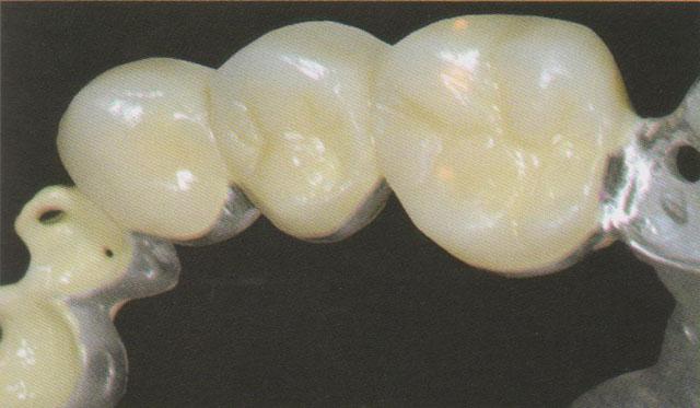 Мал. 16. Повністю облицьована жувальна поверхня зубів у другому квадранті (сегмент у ділянці зубів 24-26)