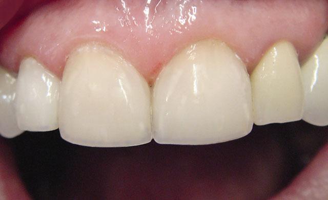 Мал. 17. Виміряні вертикальні розміри зубів