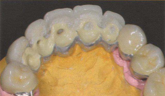 Мал. 18. Передні зуби верхньої щелепи зафіксовані на третинній конструкції за допомогою полімерного матеріалу VITA VM СC холодного затвердіння