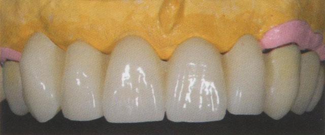 Мал. 19. Передні зуби верхньої щелепи перед виготовленням полімерного базису. Зуби виглядають занадто довгими