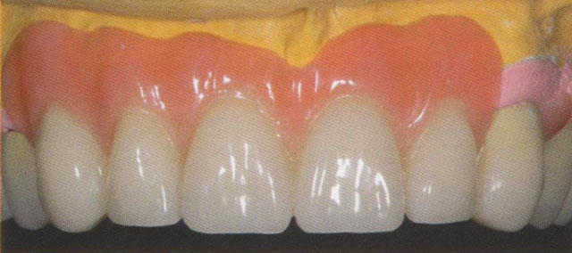 Мал. 20. Передні зуби верхньої щелепи: виготовлений полімерний базис укорочує зуби в пришійковій ділянці