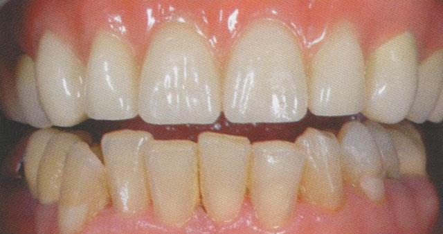 Мал. 22. Готова реставрація в порожнині рота. З оптичних причин полімерний базис був розширений і на телескопи в ділянці жувальних зубів 24-26