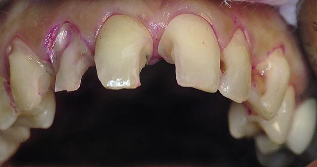Мал. 2. Зуби 13-23 після препарування: видалені старі реставрації та інфіковані тверді тканини