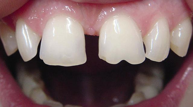 Мал. 2. Широкий проміжок між центральними і латеральними різцями, стертість ріжучого краю 11 і 21 зубів