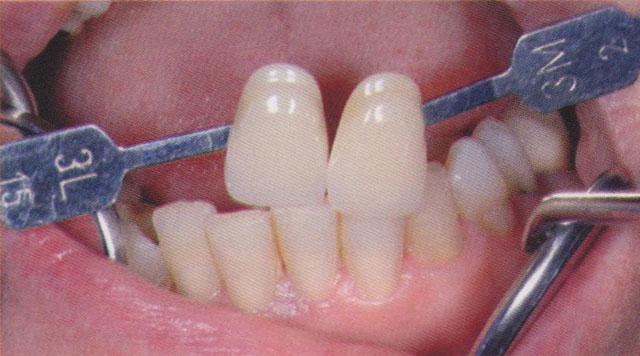 Мал. 3. Після препарування за допомогою колірної шкали VITA 3D - MASTER визначається колір зубів нижньої щелепи