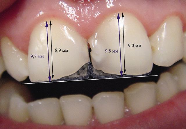 Мал. 3. Планування розмірів, форми і типу прозорості зубів