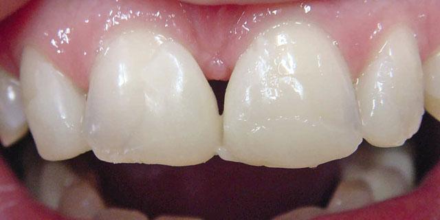 Мал. 5. Моделювання на зубах реставрації з «неходового» композиту