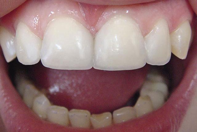 Мал. 8. Готова робота: змінена форма зубів, усунені діастема і треми, відновлений ріжучий край, відтворений тип прозорості зубів