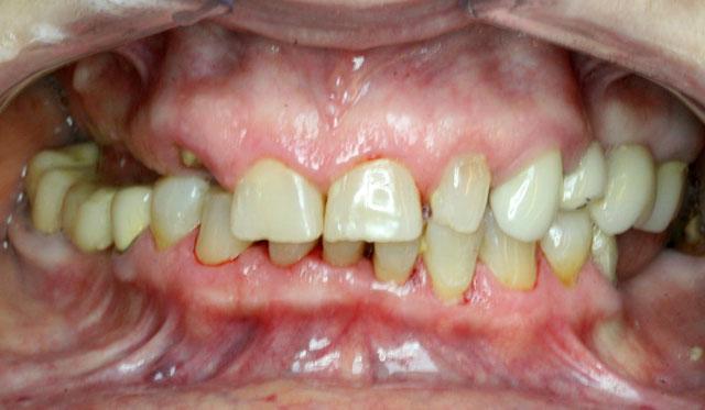 Мал. 1б. Клінічна картина в порожнині рота до лікування: зниження висоти прикусу, порушення жування