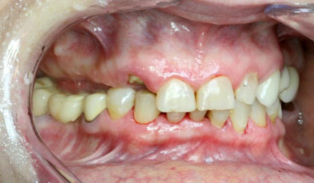 Мал. 1в. Клінічна картина в порожнині рота до лікування (праворуч)