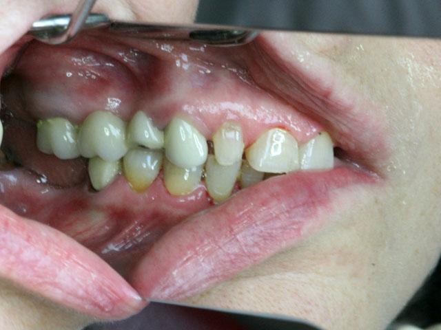 Мал. 1е. Клінічна картина в порожнині рота до лікування (ліворуч)