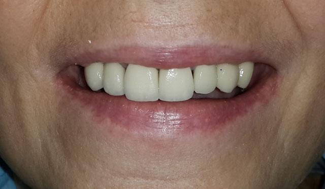 Мал. 6а. Вигляд фронтальної ділянки верхньої щелепи після установки тимчасових коронок на зубах і 2 імплантатів у ділянці іклів