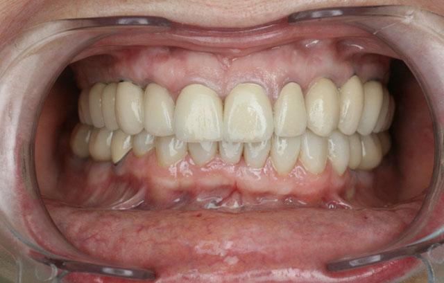 Мал. 8а. Вигляд після протезування верхньої і нижньої щелеп (фронтальна ділянка)