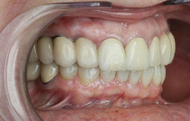 Мал. 8б. Вигляд після протезування верхньої і нижньої щелеп (права бічна ділянка)