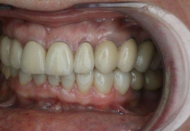 Мал. 8в. Вигляд після протезування верхньої і нижньої щелеп (ліва бічна ділянка)