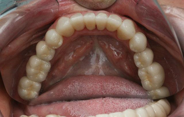 Мал. 8д. Вигляд після протезування верхньої і нижньої щелеп (оклюзійна поверхня н/щ)