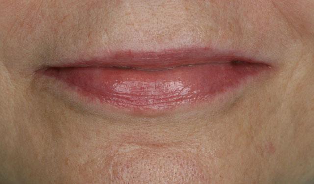 Мал. 9а. Остаточний вигляд губ після протезування, покращилася підтримка верхньої губи, змінилася наповненість м'яких тканин