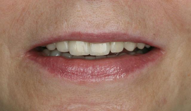 Мал. 9б. Посмішка після протезування, подовжений дизайн центральних різців надає моложавість