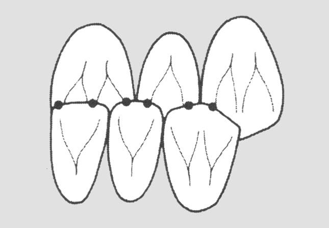 Точки оклюзійних контактів на передній ділянці при прогнатичному прикусі (вигляд з боку порожнини рота)