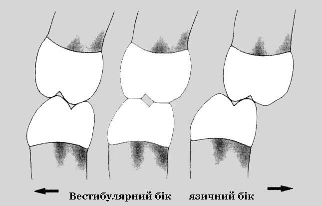 Співвідношенні бічних зубів у трансверзальній площині