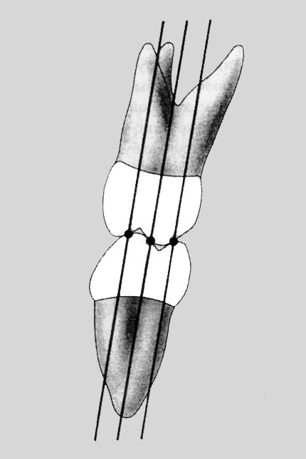 Опорні горбики спираються точково на центральні скати горбиків зубів-антагоністів. Жувальні сили спрямовані вздовж великої вісі зуба