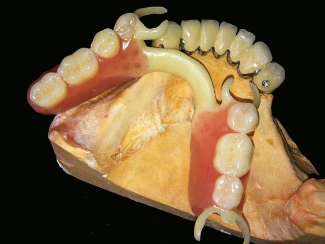 Бюгельний протез з ацеталевим каркасом