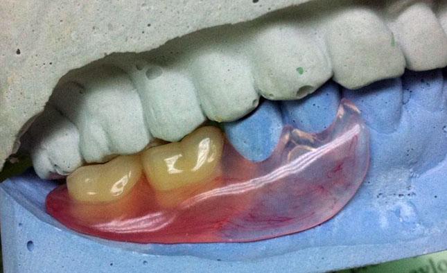 Зубоясенний кламер припасований на моделі