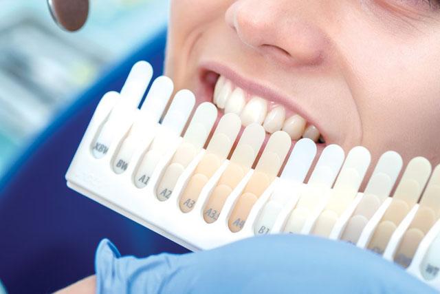 Визначення відтінку кольору зубів