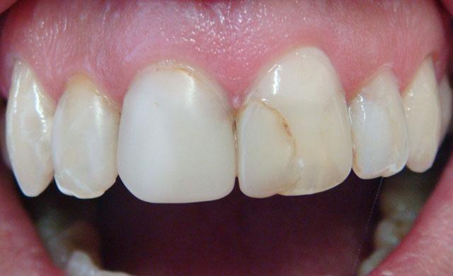 Попередня корекція форми зубів не потрібна. Мал. 1а