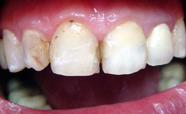 Попередня корекція форми зубів потрібна. Мал. 1б