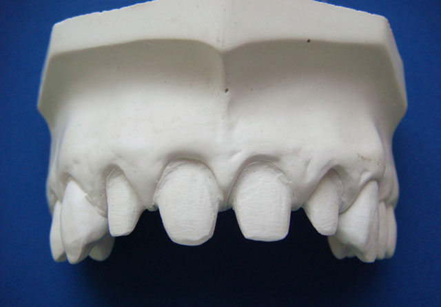 Відпрепаровані зуби на моделі. Мал. 5б