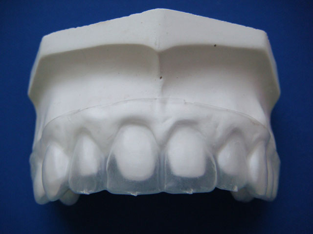Капа на моделі з відпрепарованими зубами. Мал. 6б